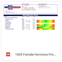 Female Hormone Profile Basic Report